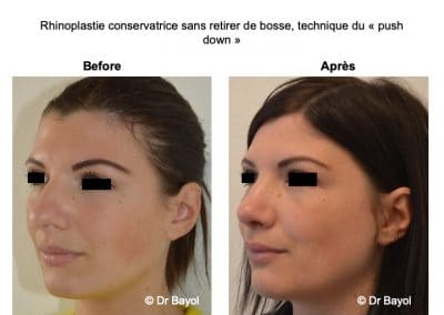 rhinoplastie acide hyaluronique Lyon
