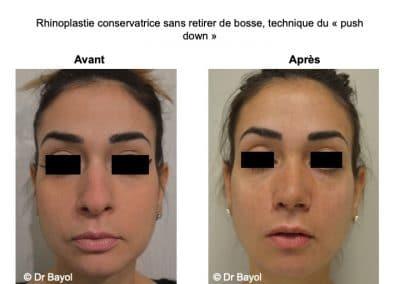 rhinoplastie conservatrice Lyon
