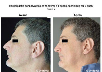 rhinoplastie médicale Lyon