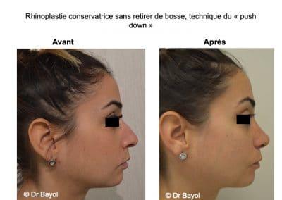 rhinoplastie push down Lyon