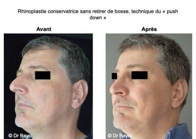 rhinoplastie ultra sonique Lyon