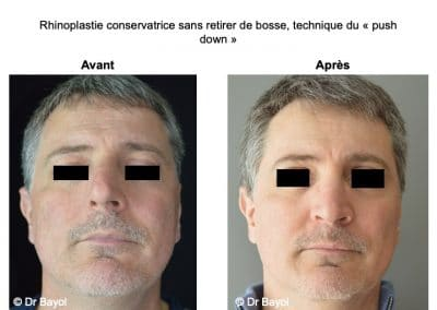 rhinoplastie ultrasonique Lyon