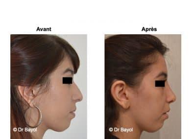tarifs rhinoplastie Lyon
